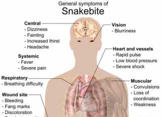 Snakebite Symptoms